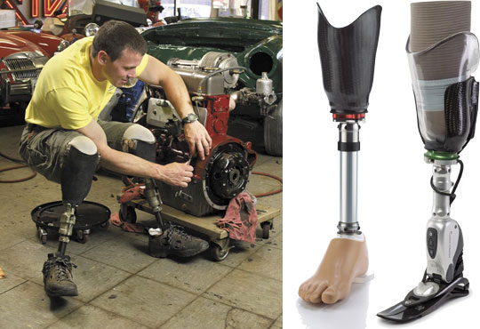 Transtibial Prostheses