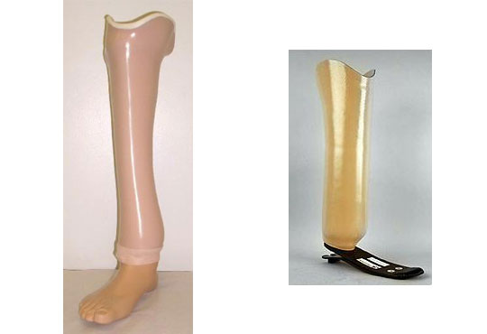 Symes Prostheses