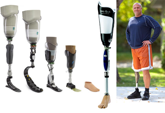 Transfemoral Prostheses