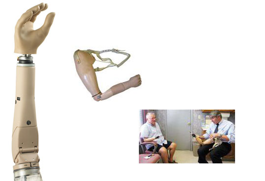 interscapular-thoracic prostheses